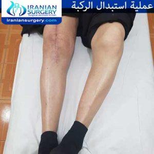 استبدال الركبة دکتور جعفري