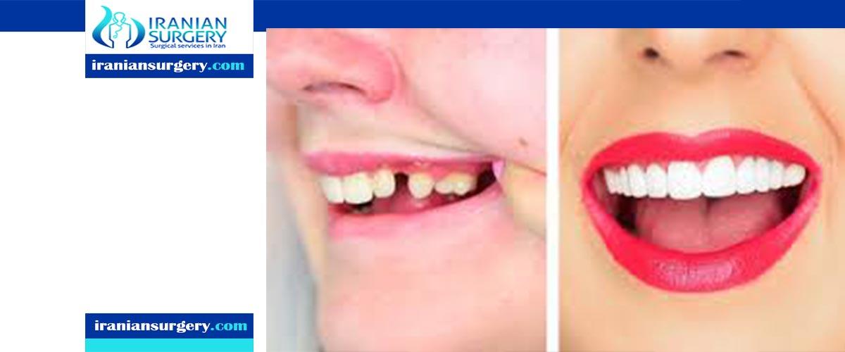 اسعار عدسات الاسنان في ایران