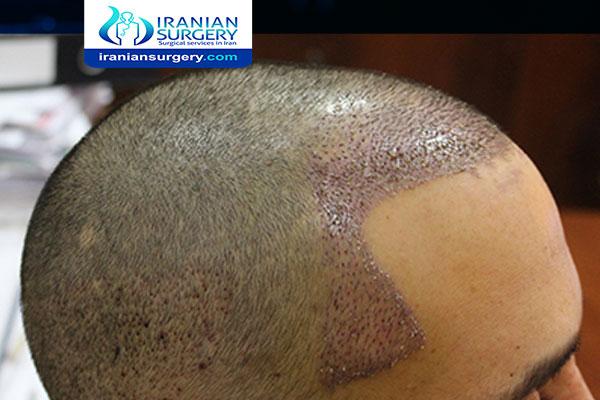 التهاب بعد عملیة زراعة الشعر