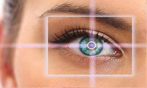 عملیة اللیزك العيون