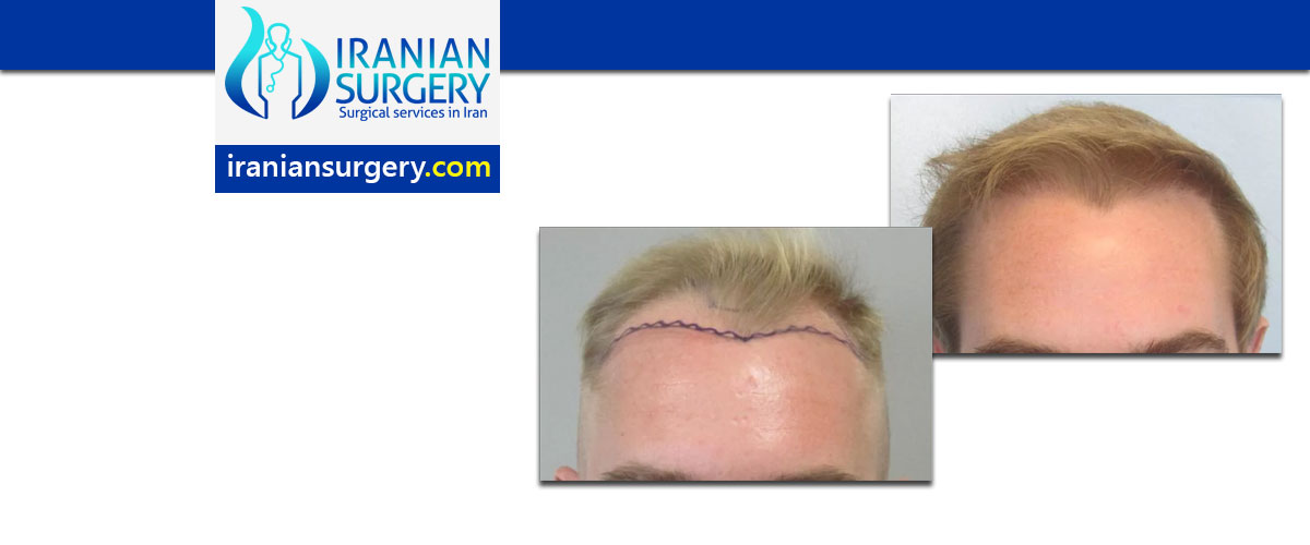 انتفاخ الجبهة بعد عملیة زراعة الشعر
