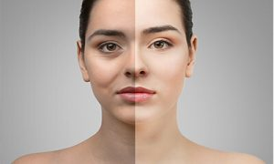 blepharoplasty surgery health care in iran