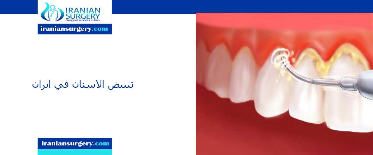 تبييض الاسنان في ایران