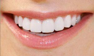عملیة تجمیل الاسنان- اللومنیرز