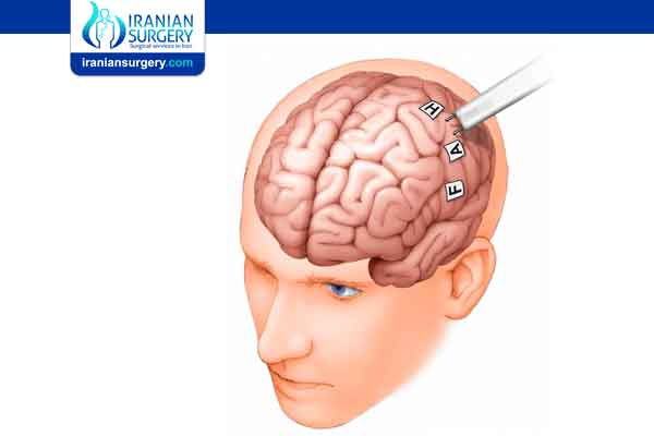 جراحة الدماغ مع اليقظة