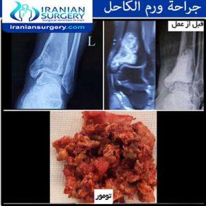 جراحة-ورم-الكاحل ابوالقاسم زاده