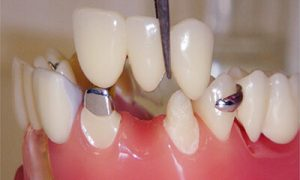 عملیة جسور الاسنان