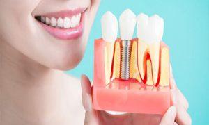 عملية جراحة زراعة الأسنان