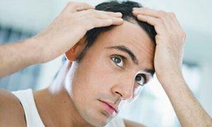 عملیة زراعة الشعر