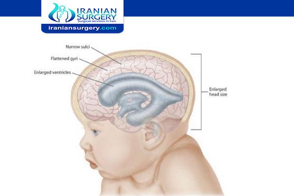 علاج استسقاء الرأس في ایران