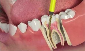 root-canal-treatment health care in iran