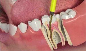 عملیة علاج جذور و العصب الاسنان