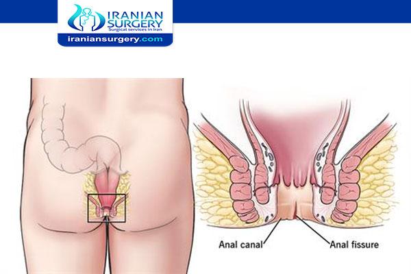 علاج شق شرجي في ایران
