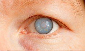عملیة جراحة المیاه الزرقاء او الجلوکوما