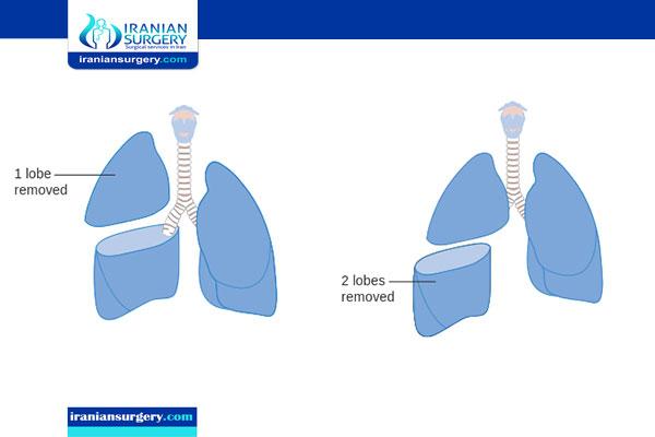 الطرق التي یجب اتباعها بعد عملیة استئصال فص من الرئة