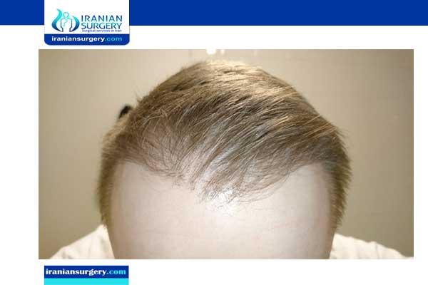مدة ظهور الشعر بعد الزراعة