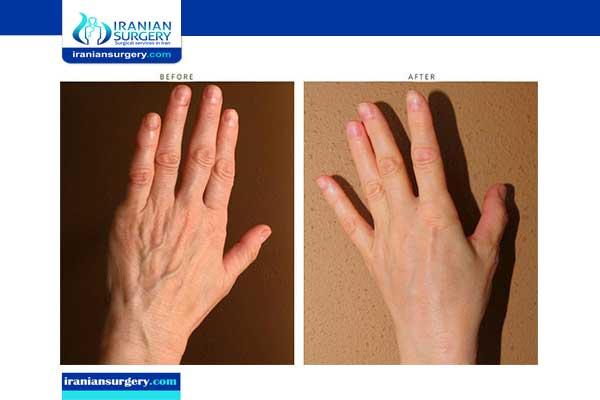 عملية تجميل اليدين في ایران
