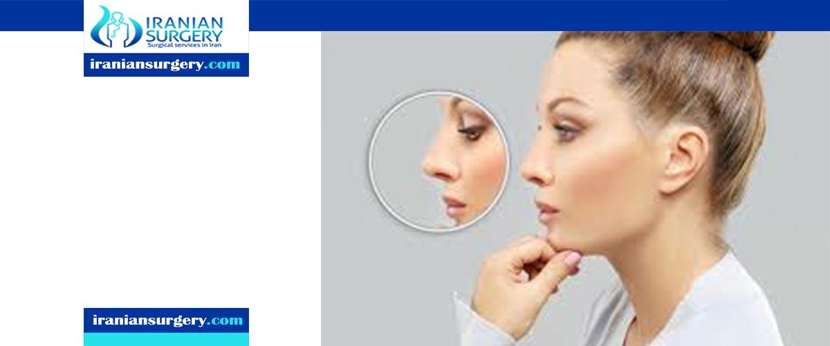rhinoplasty recovery tips
