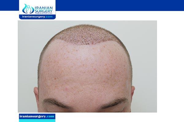 نتائج زراعة الشعر بعد 6 شهور