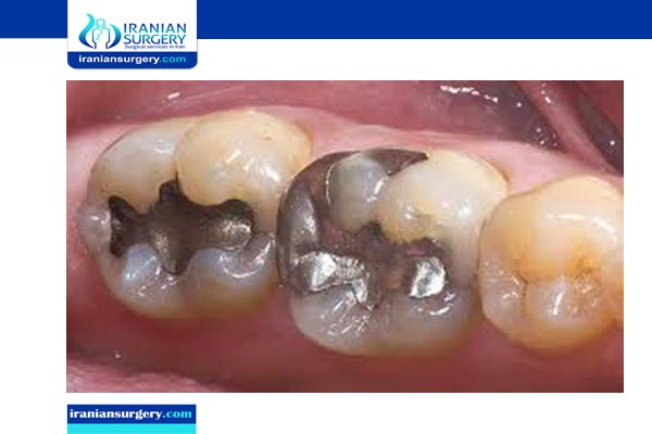 dental filling material