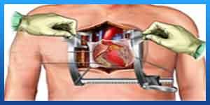 تخصص جراحة القلب