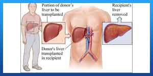 زراعة الكبد من متبرع ميت