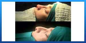 rhinoplasty in iran