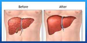 ما هي الاحتياطات بعد زراعة الكبد؟