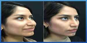 Non surgical Rhinoplasty before and after