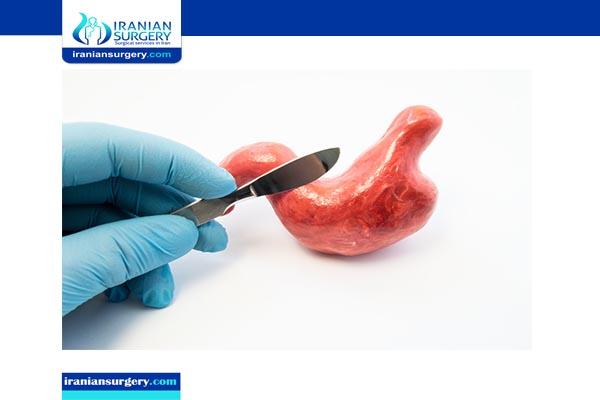 duodenal Switch surgeryIN IRAN