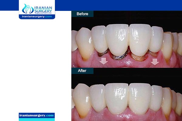 dental bridge images