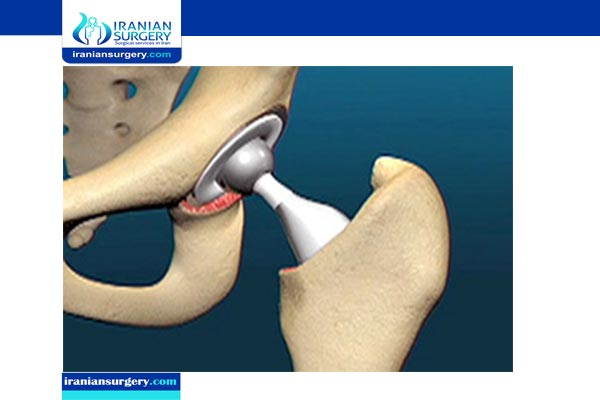 hip replacement surgery cost iran