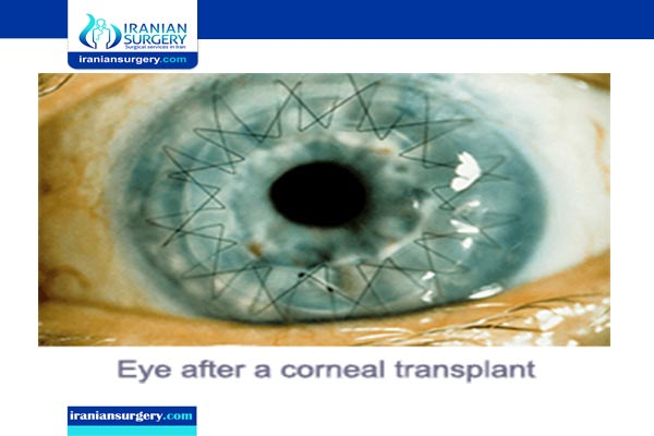 corneal transplantation in iran