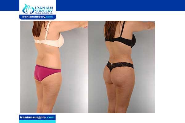 شفط الدهون قبل و بعد قبل و بعد شفط الدهون بالصور شفط البطن قبل و بعد بالصور