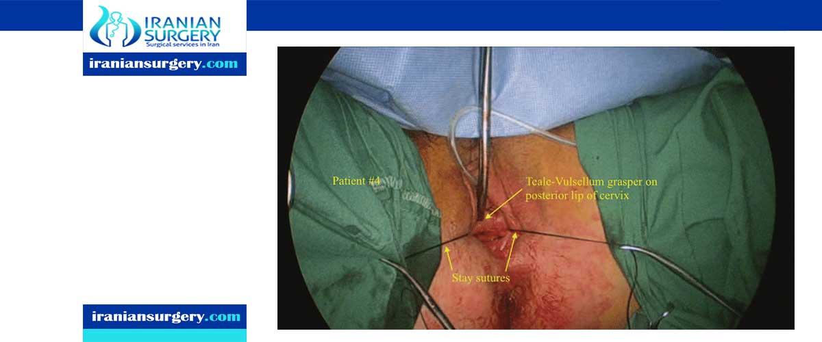 Posterior colpotomy procedure'