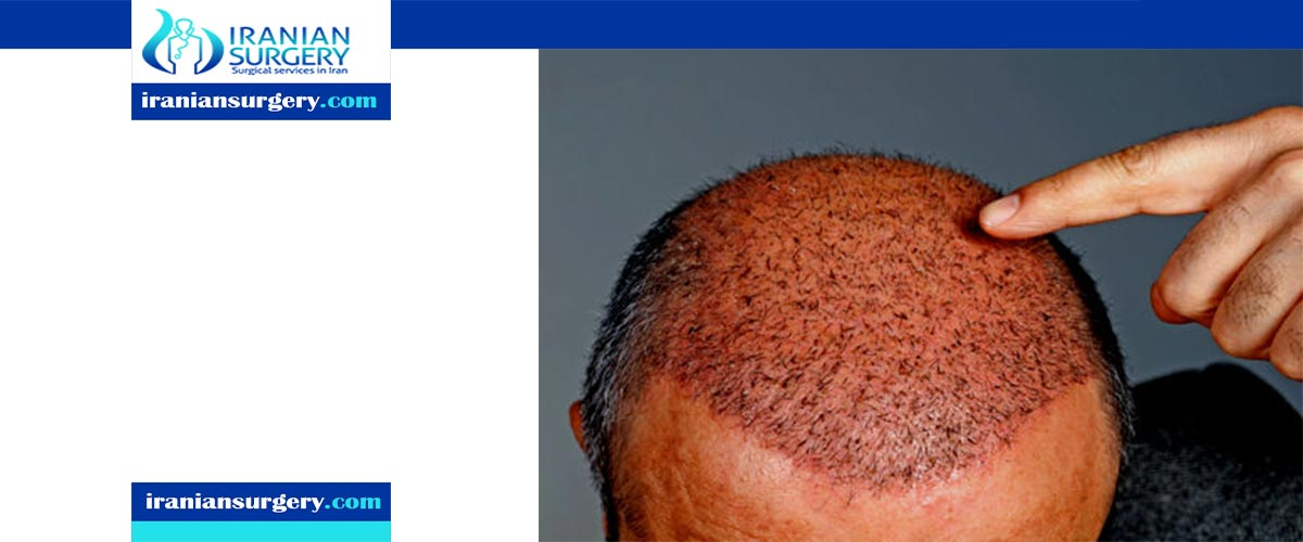 منتدی زراعة الشعر
