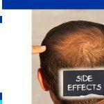 ما هي فوائد و مخاطر زراعة الشعر