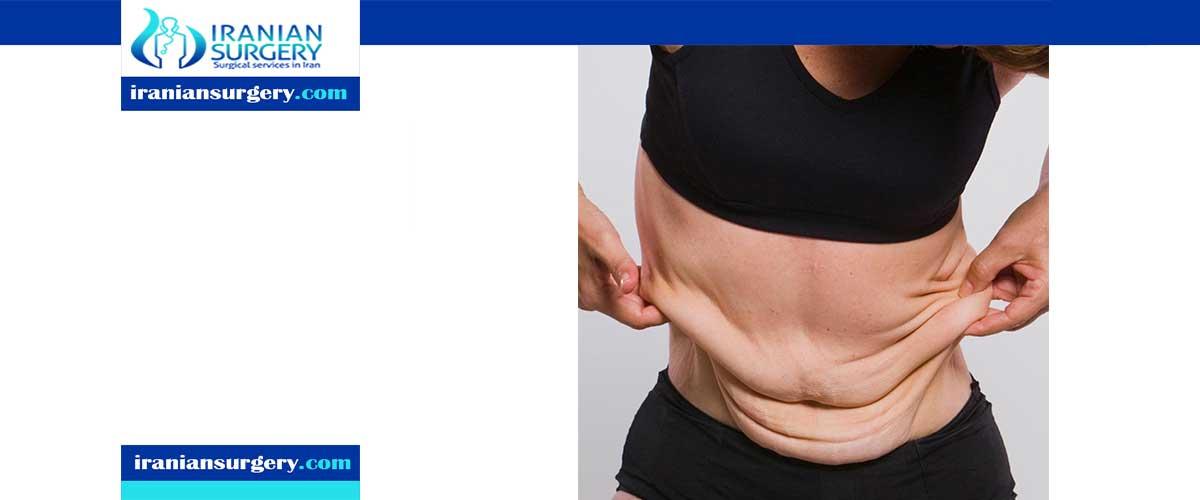 أضرار عملية شفط الدهون