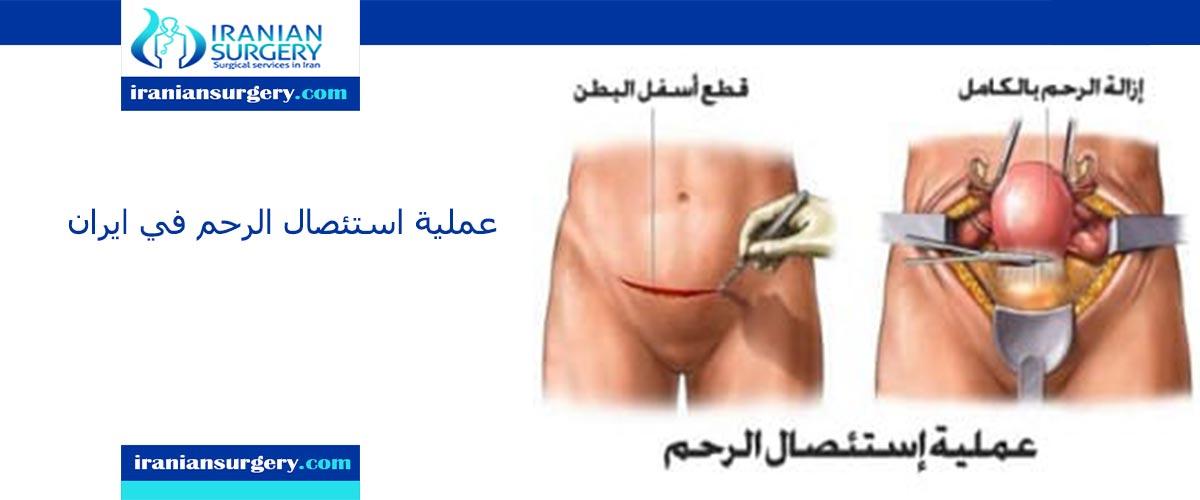عملية استئصال الرحم في ایران