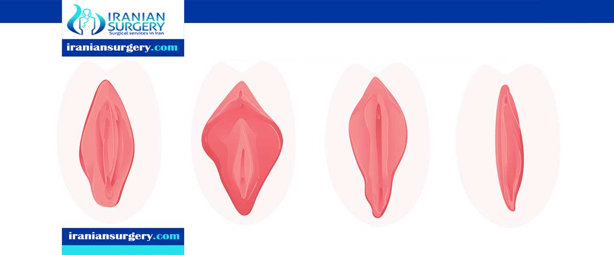 vaginoplasty in iran