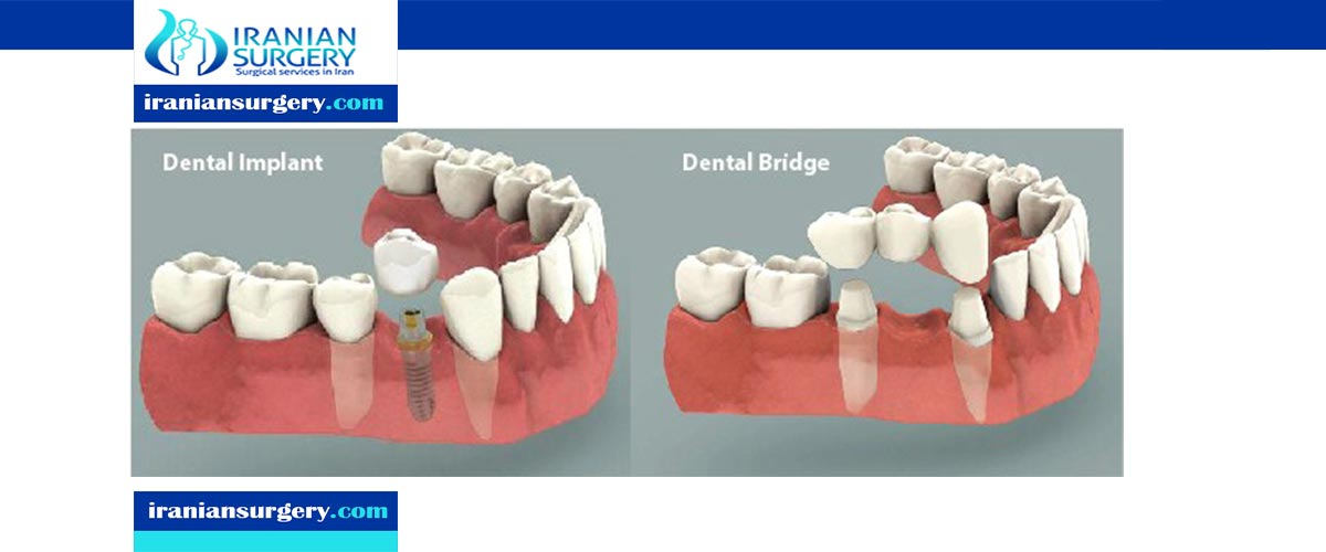 dental implant vs crown