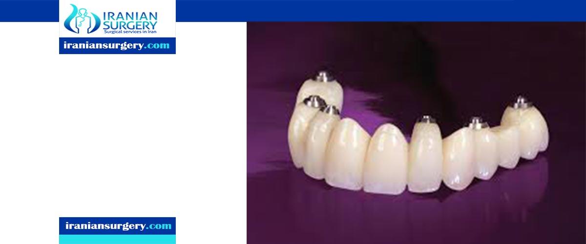 average age for dental implants