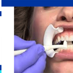 Lumineers teeth