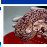 علاج ورم الدماغ في ايران