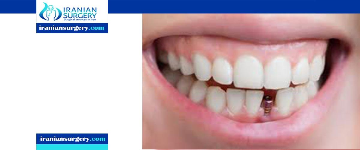 زراعة الاسنان في ایران