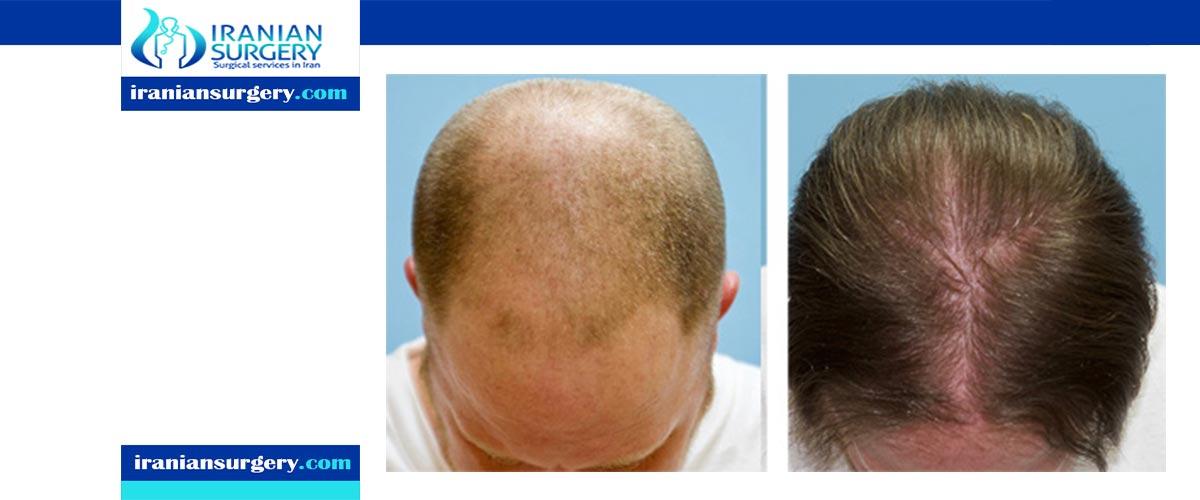 نتائج زراعة الشعر بالصور