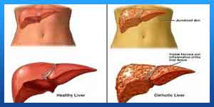 Risks and Complications of Liver Transplant
