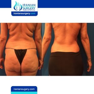 Liposuction before and after Iran