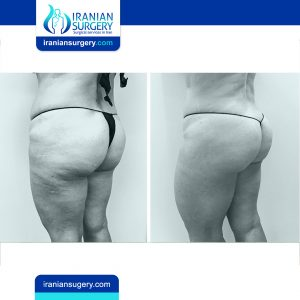 before and after Iran Liposuction