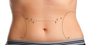 tummy tuck scar after 5 years